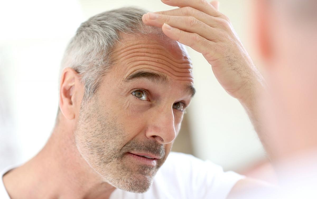 Protez Saç Kimlere Uygulanır ?